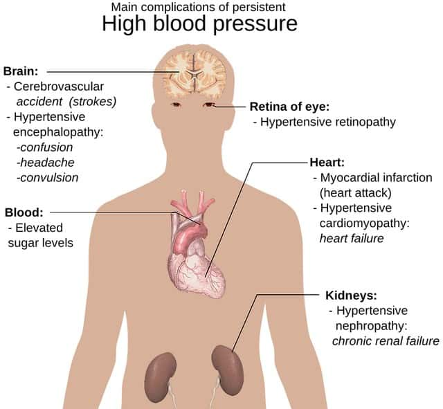 Hypertension complications - Cellgevity
